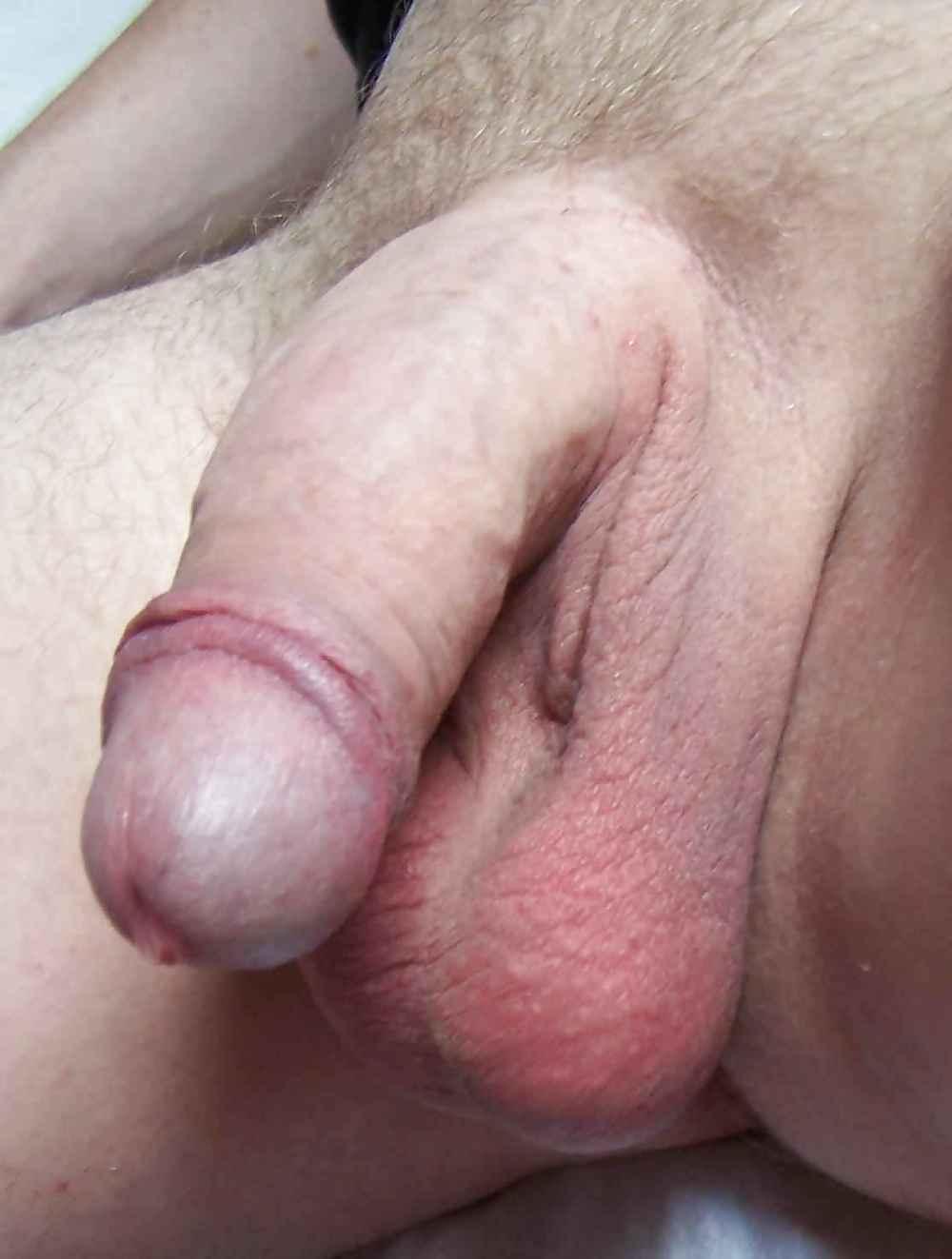 Seppel